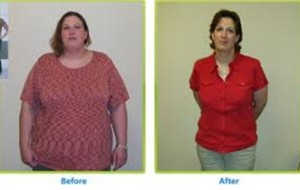 Bariatric (Anti-obesity) Surgery
