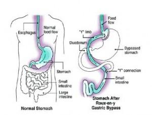 Laparoscopic-gastric-bypass