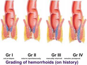 hemorrhoids-27-638