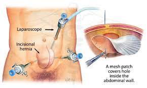 lap hernia repair