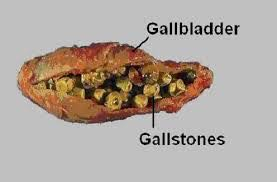 stones in gallbladder